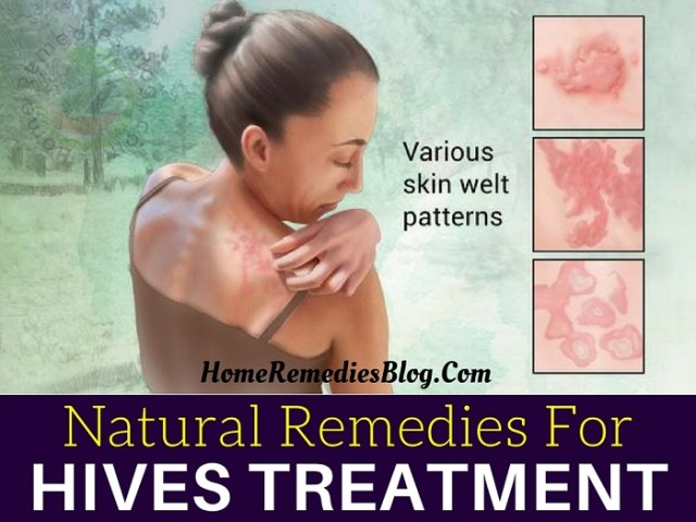 Top 10 Home Remedies To Treat Stress Hives