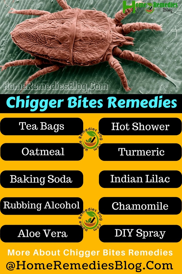 15 Best Home Remedies To Treat Chigger Bites Home Remedies Blog