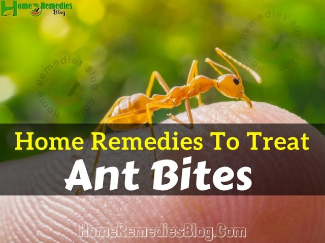 Home Remedies To Treat Ant Bites
