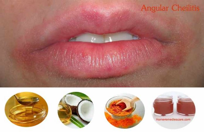 18 Natural Home Remedies To Treat Angular Cheilitis