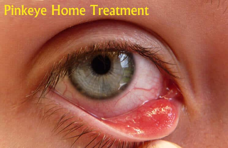 10 Home Remedies to Get Rid of Pink Eye Naturally