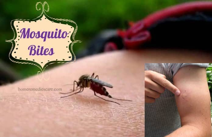 20 home remedies to get rid of mosquito bites from itching and