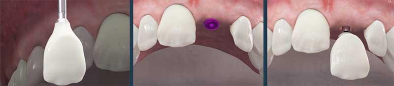Tipos de transplantes dentales