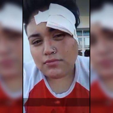 lesbiana golpean hombres
