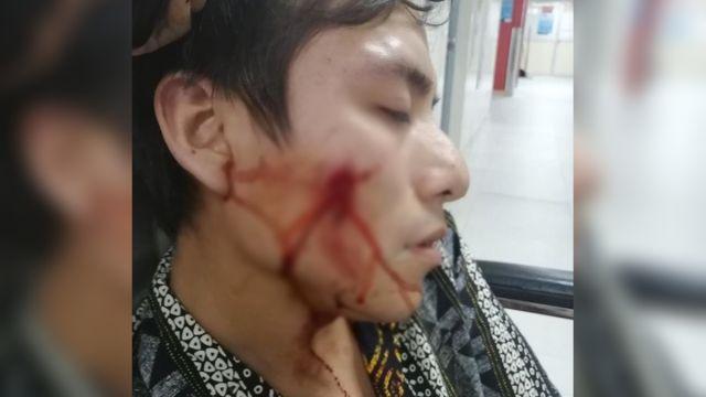 policía joven gay atacado