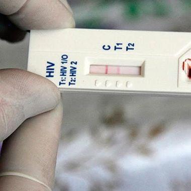 aumento-casos-vih-pandemia-COVID-19
