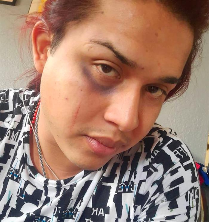 Jessy ventura heridas conductor uber gay