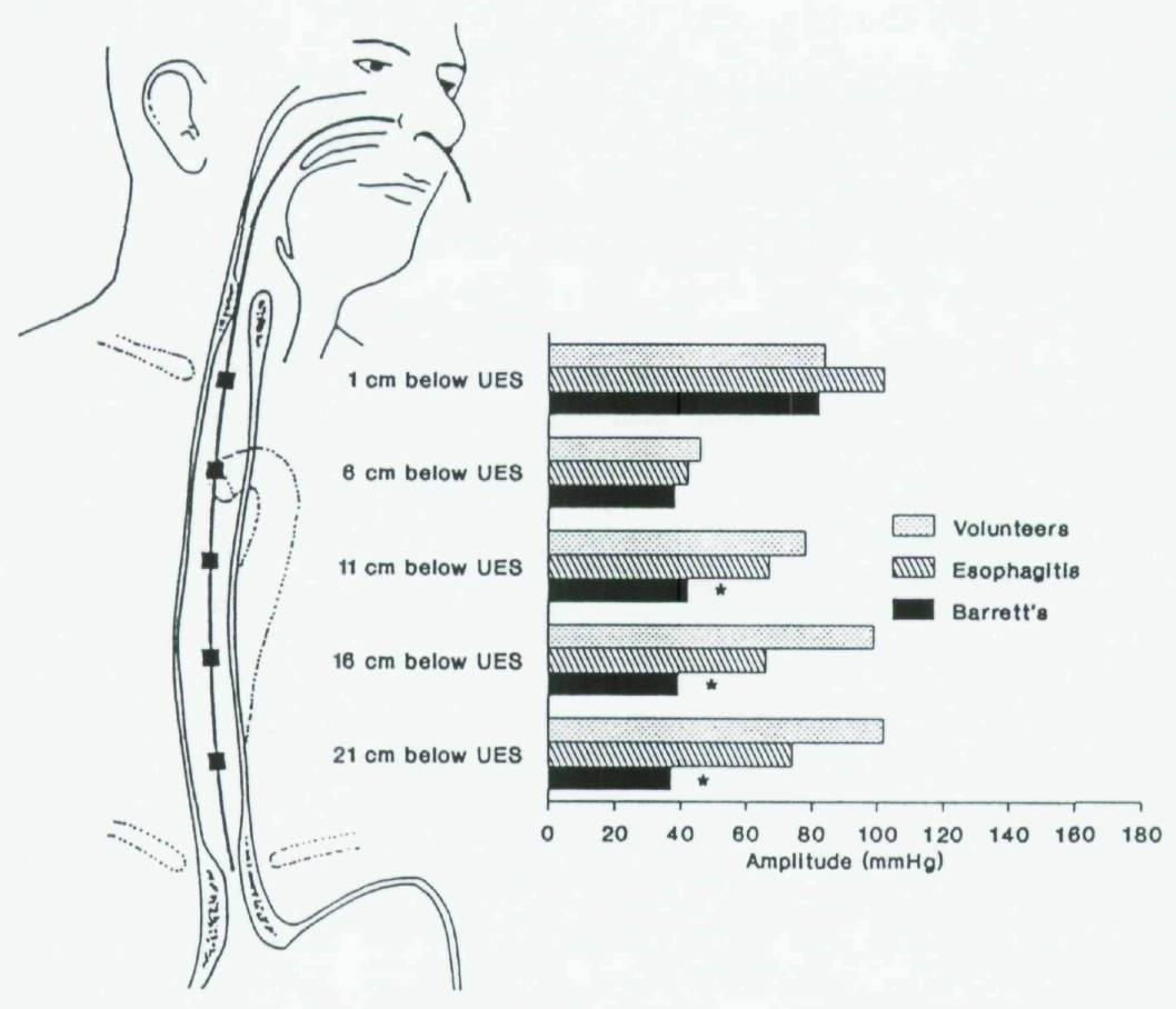 Does Esophageal Dysfunction In Cle Influence Bolus