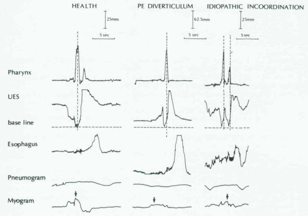 medium resolution of esophageal motility tracings in health left in pharyngoesophageal pe diverticulum middle and in idiopathic incoordination right