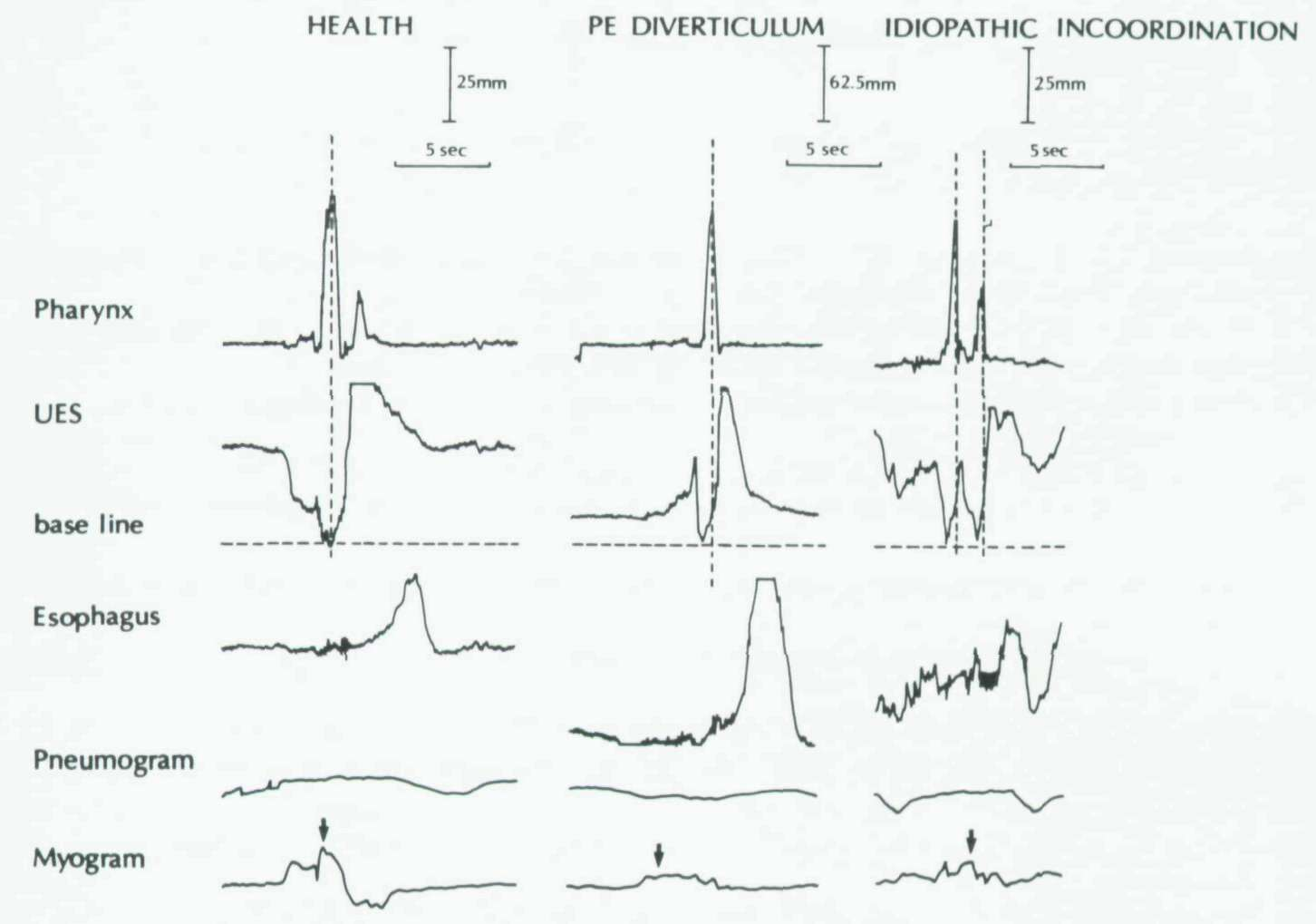 hight resolution of esophageal motility tracings in health left in pharyngoesophageal pe diverticulum middle and in idiopathic incoordination right
