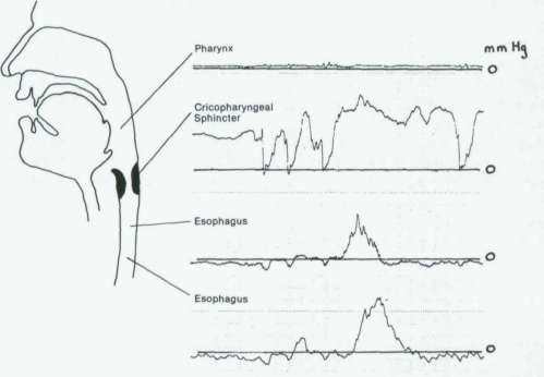 small resolution of failure of pharyngeal pump manometric record of a patient with absence of a pharyngeal pressure wave cricopharyngeal relaxation is normal