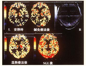 脳血流の変化の比較