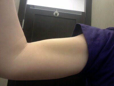I have a bicep