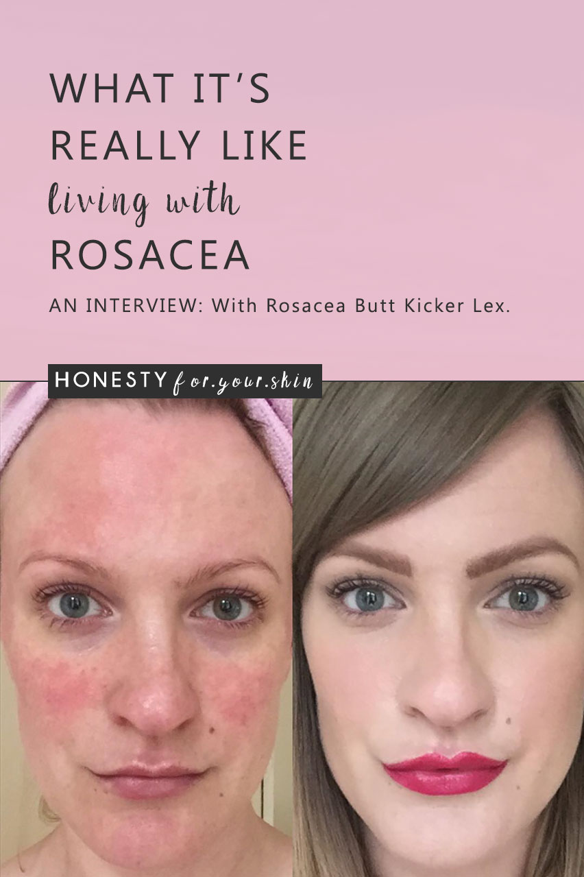 Want to know what it's really like living with rosacea? No doctors textbooks, no perfect 'you must do this answers', just the real honest truth? The you absolutely must read this interview (click here -> http://wp.me/p6LuQS-14C) with Lex from TalontedLex.co.uk