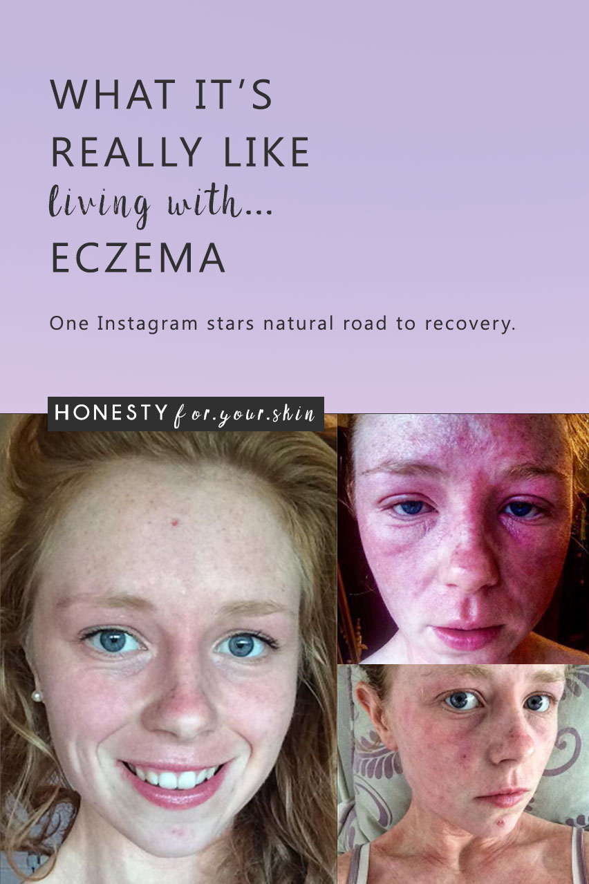 Over 222 million people live with eczema daily – crazy 'eh… the numbers say that figure is only on the rise. It's frustrating, it's darn itchy, it's confidence sucking and it's scratchy, itchy painful. If you have eczema you are not alone, you are beautiful, you are strong and you can still be in control. You might just need reminding… which is why I introduce you to the completely awesome, eczema beating – Alice.