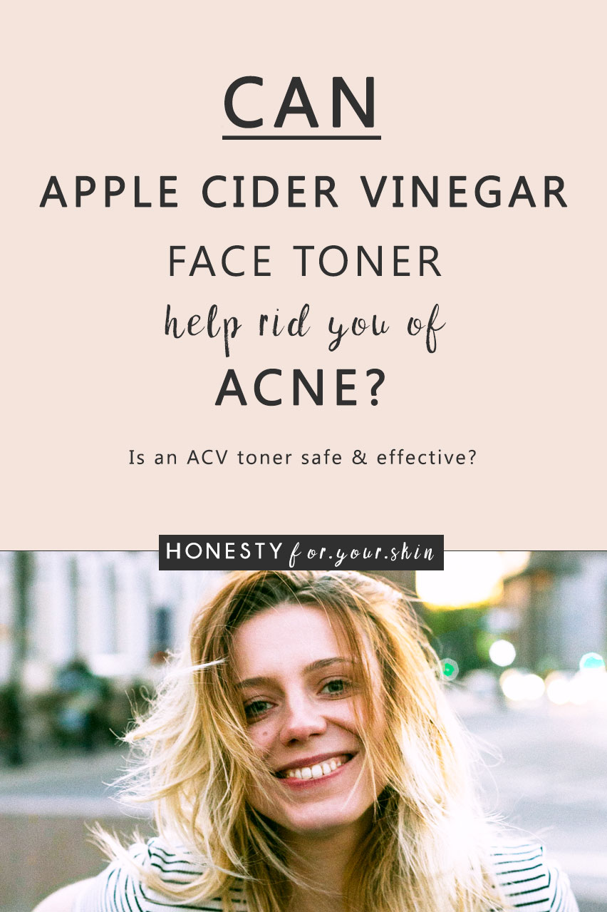 Apple cider vinegar for acne - have you heard about it? Tempted to try it? Afraid to cause you skin more acne? Not sure if apple cider vinegar will be a hallowed natural cure or a big ol' pain in the face? If you're considering using apple cider vinegar for acne, are already using apple cider vinegar for acne or have an ACV toner ready and raring to go - come read with me now...