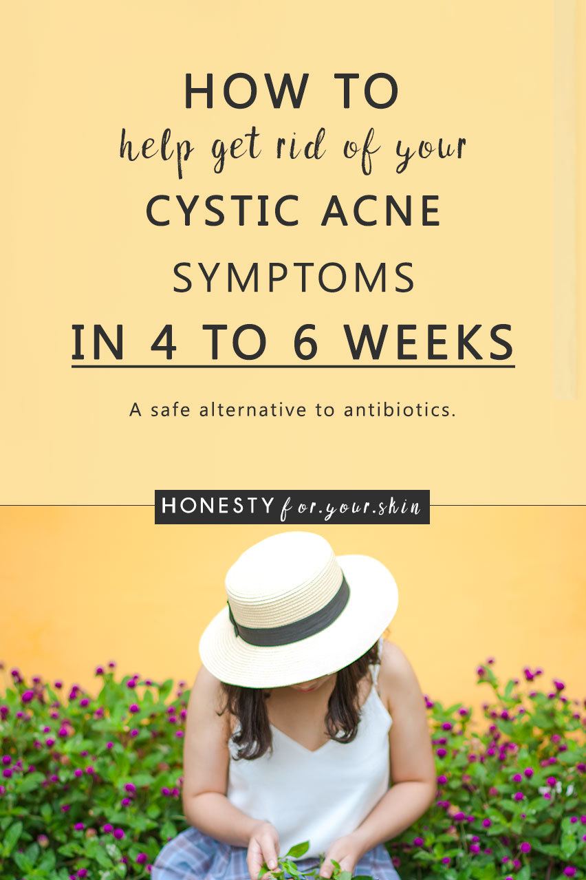 Imagine a cystic acne treatment working without mission to make your skin look like the Sahara desert. You do not have to live with cystic acne my friend. Oh no - there are cystic acne treatments which work. Come find out why your acne's become red, inflamed and cystic, what's causing you cystic acid and exactly what you can use to help get rid.