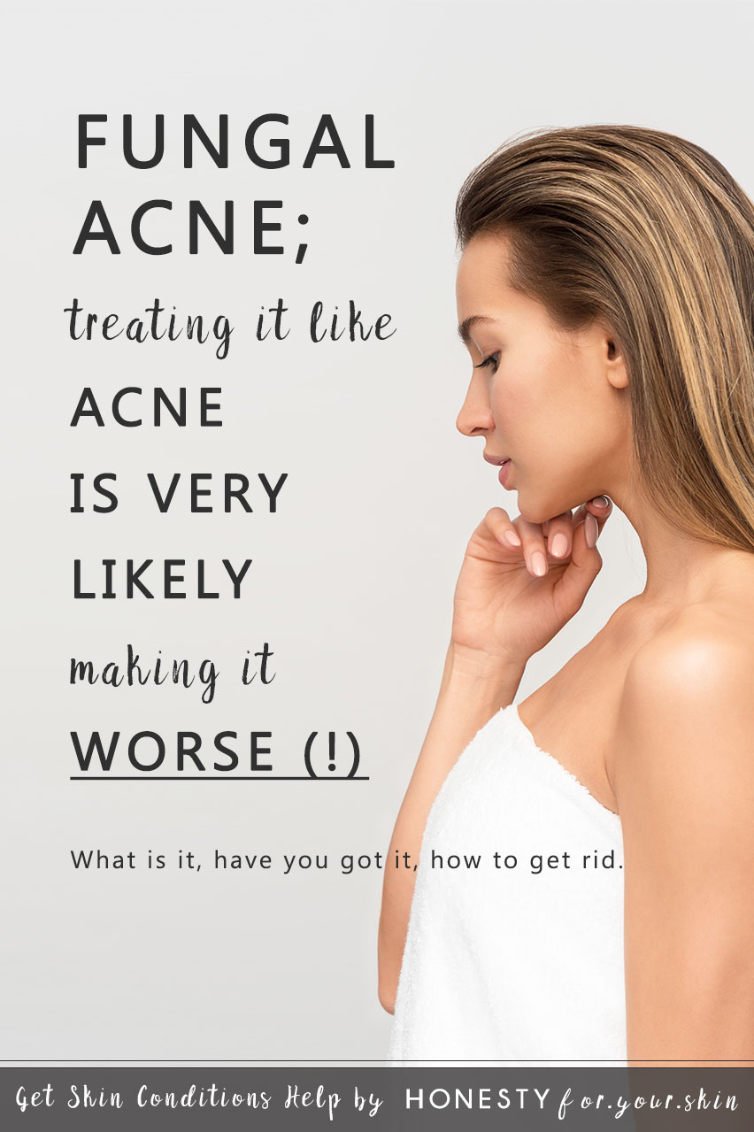 Today we're going to set the record straight. Today we're going to answer - What is fungal acne (with pictures)? What causes fungal acne? Do you have fungal acne? How do you treat fungal acne? Ready for multiple knowledge bombs? Let's get you sorted my friend...