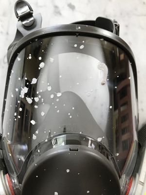 This photo shows how a face mask saved Bill from the splatter of burning-hot liquid from an oxalic acid vaporizer.