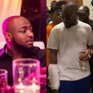 Accident? Davido Hand Badly Injured (See Photos + Video)