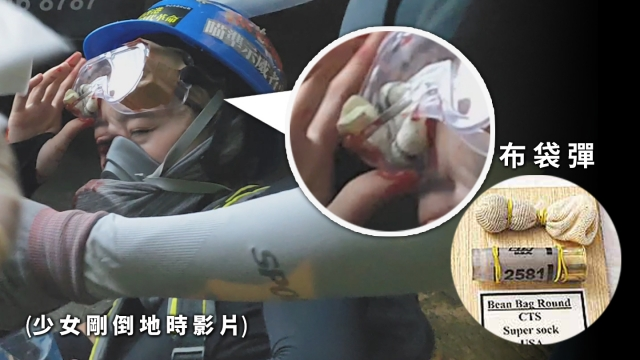 bean bag round protester right eye