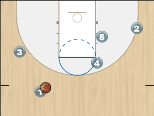 jazz post screen set