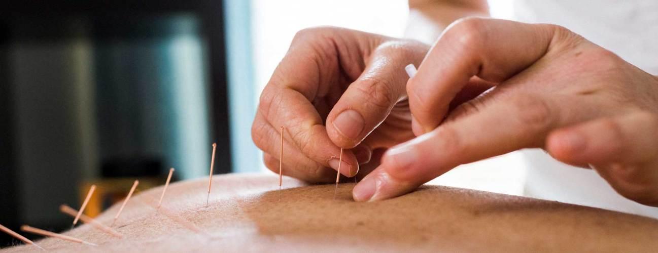 acupuncture johns hopkins medicine