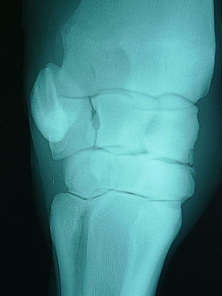 馬のひざの手術