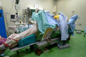 馬の疝痛の手術