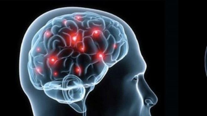 20140111-nocicettina-cervello-decisioni-660X371