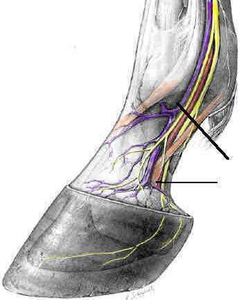 17k Neurectomy Site