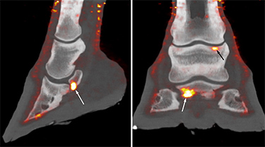Combined PET and CT images of the foot of a 20-year-old Thoroughbred.