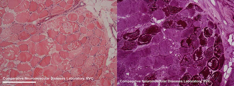 Histological detail of muscle from a horse with severe type1 polysaccharide storage myopathy, revealing the polyglucosan inclusions and muscle fibre disruption. Left - H&E stain; right – PAS stain.