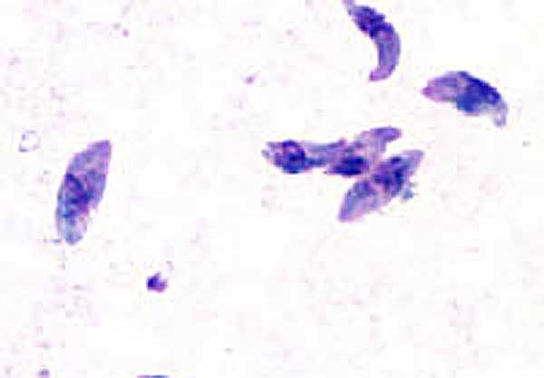 Stained example of Toxoplasma gondii tachyzoite. Tachyzoites are one of the three infectious stages of the parasite. They are typically crescent shaped with a prominent, centrally placed nucleus. Photo: DPDx Image Library (Public domain), via Wikimedia Commons