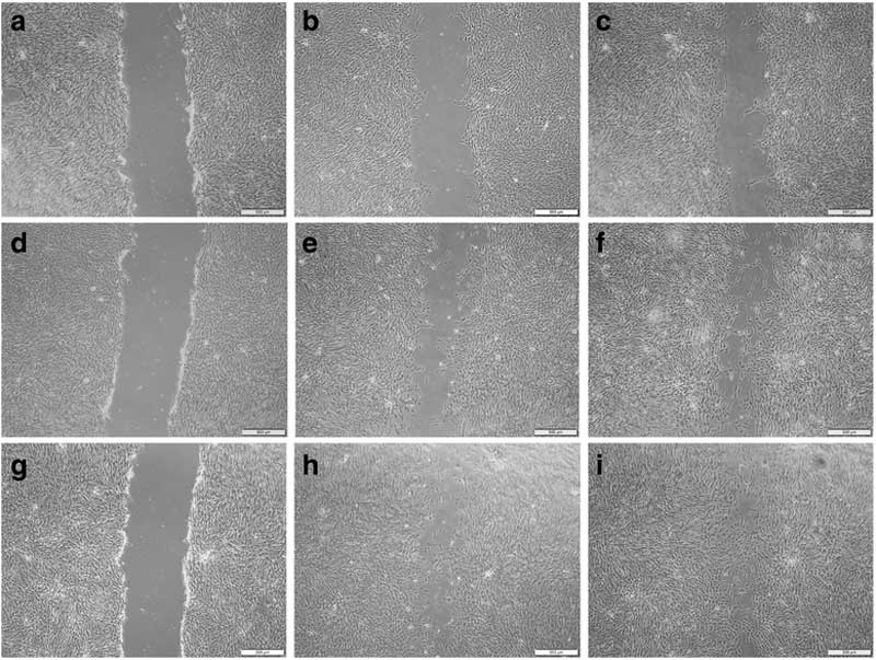 Photomicrographs of initial scratch created with a pipette tip compared with same scratch 36 hours later and at end of study, at 72 hours, for each experimental group. a–c show the control group, from left, at the start, after 36 hours, and after 72 hours.. d–f show the results for the same horse with use of the supernatant solution; and g–i show the results for the same horse from the stem cell group. Images: Sherman et al DOI: 10.1186/s13287-017-0577-3