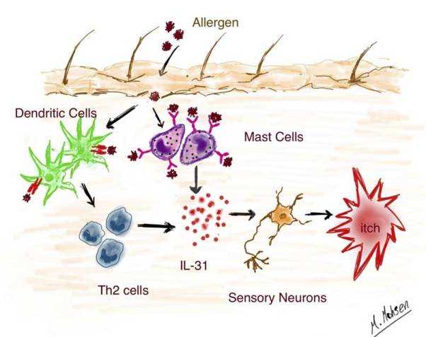 IL-31 is the central mediator of the itching. Allergens that penetrate the skin activate mast cells on the one hand and type 2 T helper cells on the other. Both cell types then turn off IL-31, which stimulates peripheral nerves to send an itch to the brain. When IL-31 is neutralized by antibodies, the itching stops. Image: M. Mohsen / University of Bern