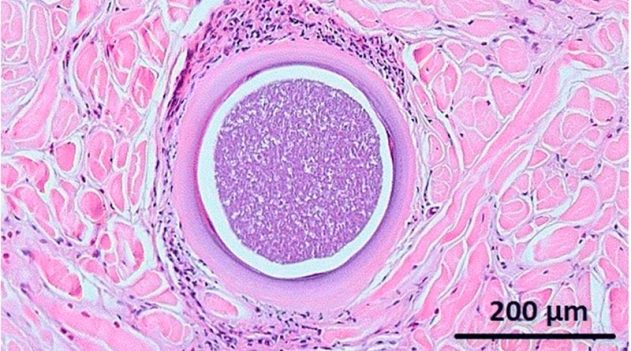 A histopathological preparation from the male donkey showing a cyst full of bradyzoites (encysted parasites). Photo:Liénard et al.https://doi.org/10.1186/s13071-018-2993-3