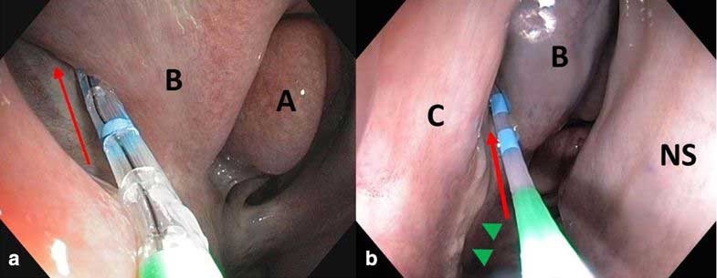Endoscopic images of the right 'drainage angle' (red arrow) with the Swing Tip-catheter in place. The catheter is advanced along the drainage angle and secretions are aspirated. a) In a healthy control horse. b) In a horse with squamous cell carcinoma of the right sinus system with purulent, malodorous discharge (green arrowheads). A: middle nasal concha, B: dorsal nasal concha, C: ventral nasal concha, NS: nasal septum
