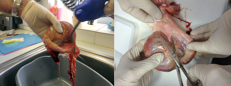 Left: Washing of the testicle. Right: Stage 1 - Removal of the epididymis.