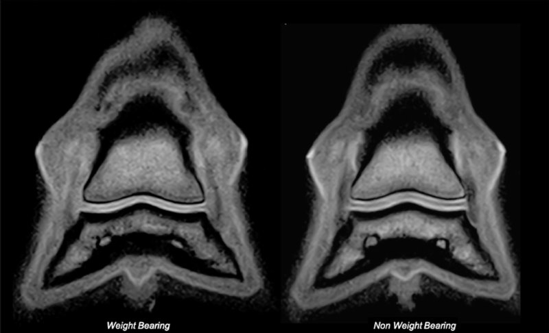 Comparison of imaging from the same forefoot, weight-bearing and non-weight-bearing, illustrating the difference in articular cartilage thickness. Image: Evrard et al. https://doi.org/10.1371/journal.pone.0211101