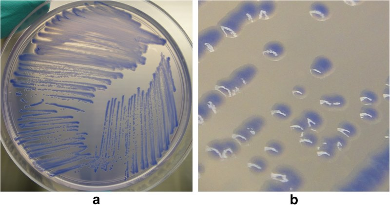 Representative growth of B. mallei. (a) plate view and (b) colony view, on BM agar after 72 hours of incubation at 37 degrees Celsius. Kinoshita et al. https://doi.org/10.1186/s12917-019-1874-0