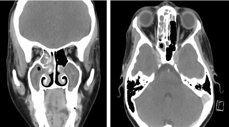 CT scans show evidence of the infection
