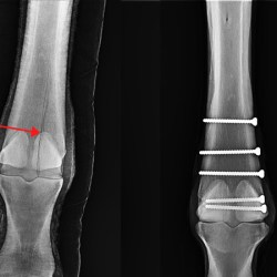 Digital radiographs show the condylar fracture to the right front leg, and the five screws that completed the surgery.