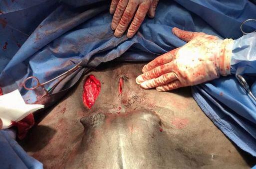 Dr Davis makes an incision.
