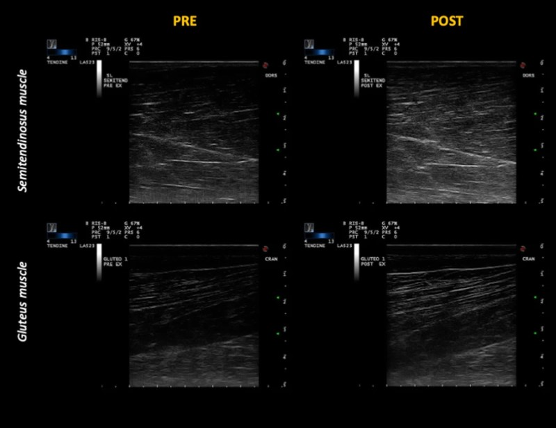 Ultrasound images of semitendinosus (upper panels) and gluteus medius (lower panels), acquired before and after exercise.
