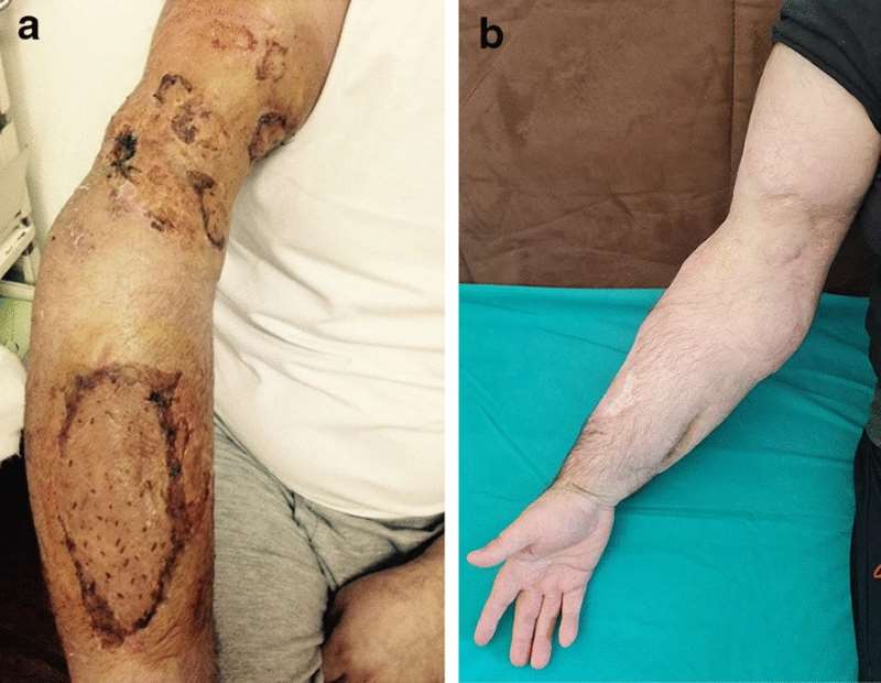 The arm six weeks after injury (a) and two years after the incident (b).