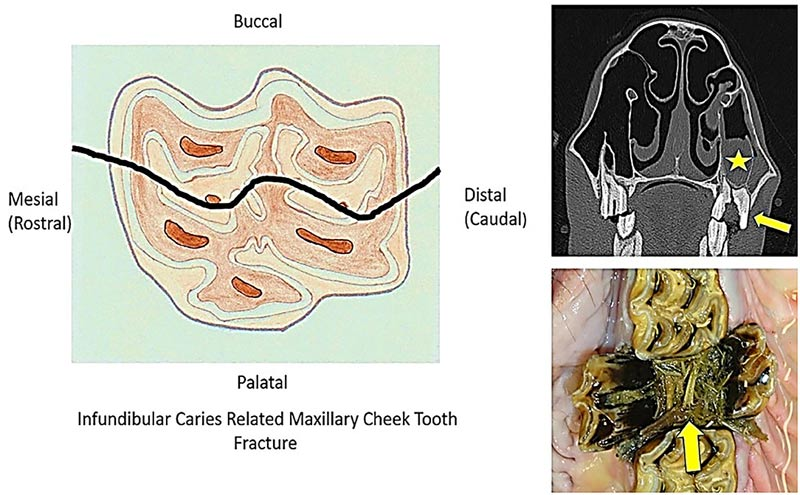 The diagram on the left shows the fracture plane through both infundibula (that would have advanced caries and likely coalescence of both infundibula before fracturing).