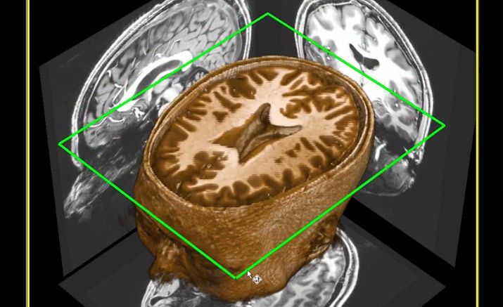 Advanced MRI is being used to collect data on mild traumatic brain injuries to give certainty to when an athlete's brain has fully recovered and it is safe to resume play.
