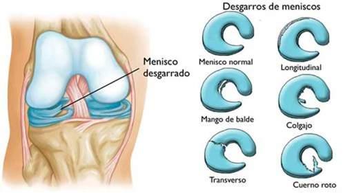 Ruptura de los meniscos, lesión que no se puede suturar o coser