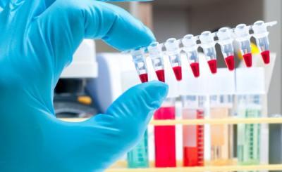 pruebas antidoping
